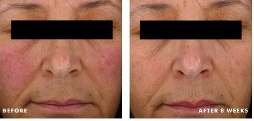 Результаты применения Redness Neutralizer ot SkinCeuticals после 8 недель
